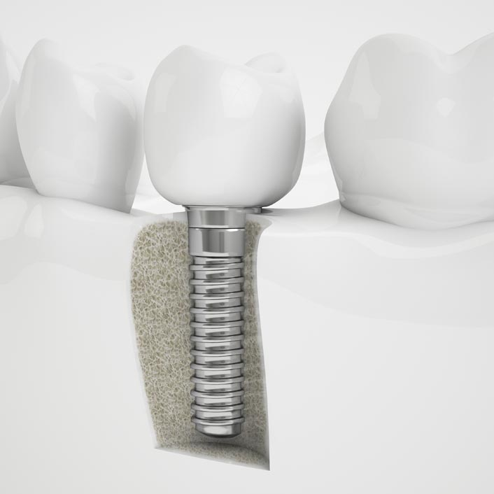 Dental Implant Restorations by Tagle & Castillo Cosmetic & Family Dentistry in McAllen, TX